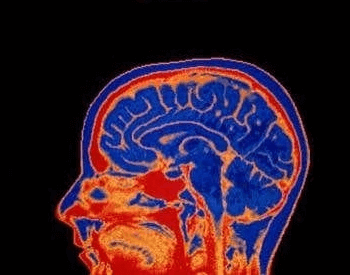 An MRI (Magnetic Resonance Image) of the human brain