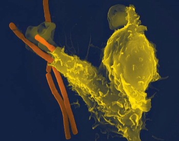 A picture of a white blood cell (yellow) attacking anthrax bacteria (orange)