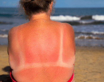 A picture of a woman with sunburn from UV exposure