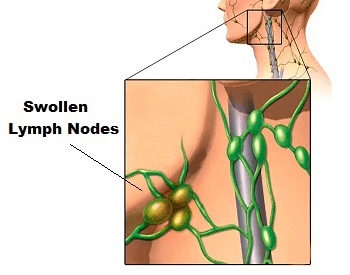 A diagram showing what swollen lymph nodes look like