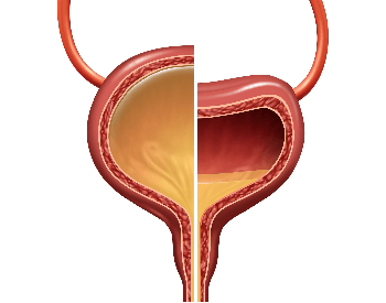 A picture showing a full bladder and a half full bladder