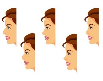 A diagram of the different shapes of the nose