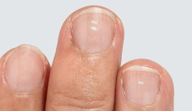 Fingernail Facts for Kids