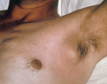 A picture of hair in the human armpit