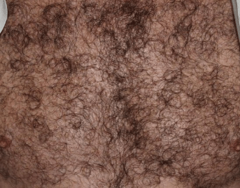 A picture of hair on the human chest