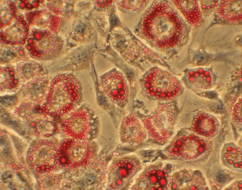 A picture of human fat cells under a microscope