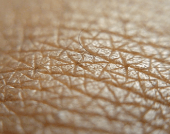 A close-up picture of human skin and a human hair