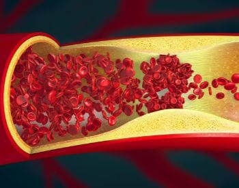 An illustration of blood cells blocked in a heart artery