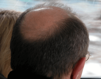 A picture of male pattern baldness