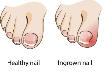 A picture of a normal toenail verus an ingrown toenail