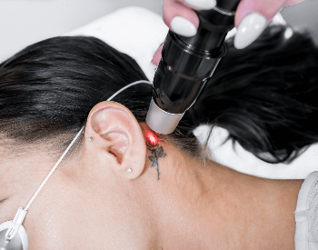 A picture of a tattoo being removed from a neck