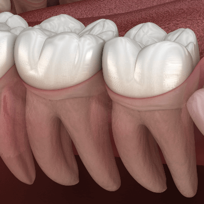 A Picture of Human Teeth