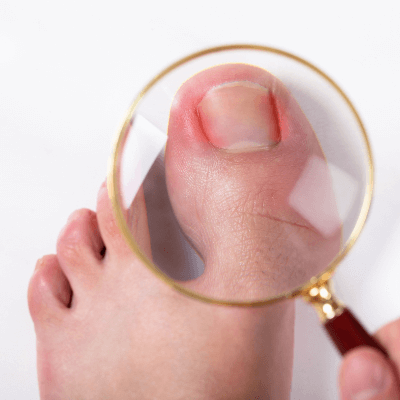 A Picture of Human Toenails