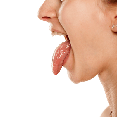 A Picture of the Human Tongue