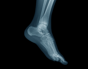 A picture of human foot bones in an x-ray picture