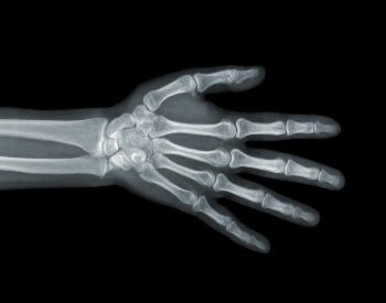 A picture of human hand bones in an x-ray picture